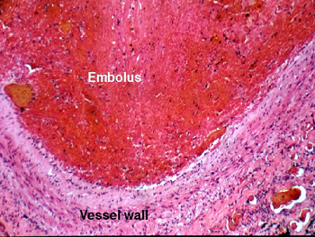 It Is A Pulmonary Embolus Be Sure You Know The Difference Between Thrombus And An As Well Sorts Of Things
