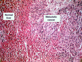 metastatic cancer of the liver)