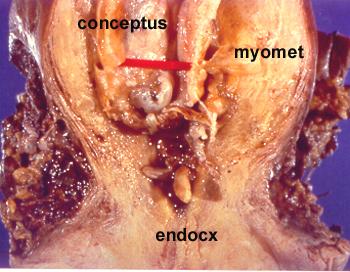 ectopic pregnancy case studies