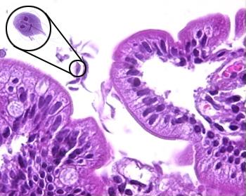 trichinella spiralis életciklusa giardia cryptosporidium