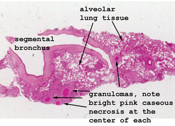 Lung+tissue+slide+labeled